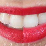 REVIEW: Crest 3D White Whitestrips Luxe Supreme FlexFit