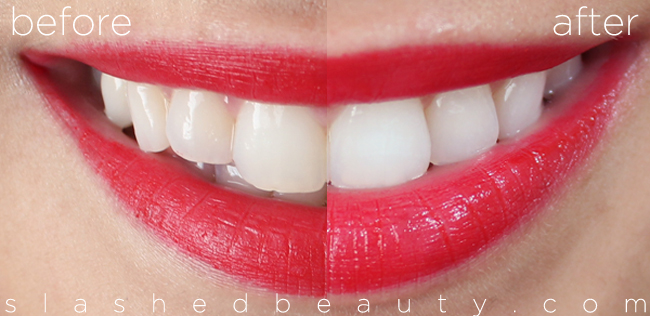 Review With Before After Crest 3d White Whitestrips Slashed