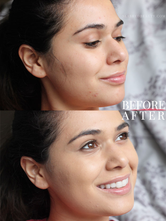 The new e.l.f. Aqua Beauty Mousse Foundation gives you radiant coverage with a lightweight feel. Here's a before & after-- read the full review to see how it's different than its description! | Slashed Beauty