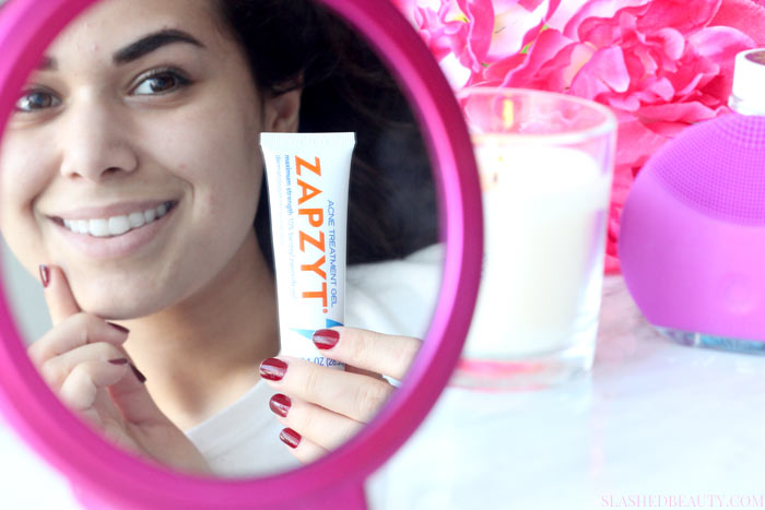 Find out why we get period acne that's stubborn and hard to manage, and what you can do to treat it-- I'm using ZAPZYT! | Slashed Beauty