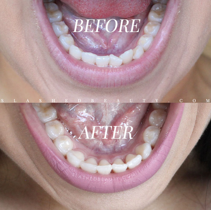 Straighten teeth at home | Smile Direct Club Before & After Results and Review | Smile Direct Club Discount Coupon Code: Get 50% off your impression kit & $100 off aligners with code SlashedBeauty | Slashed Beauty