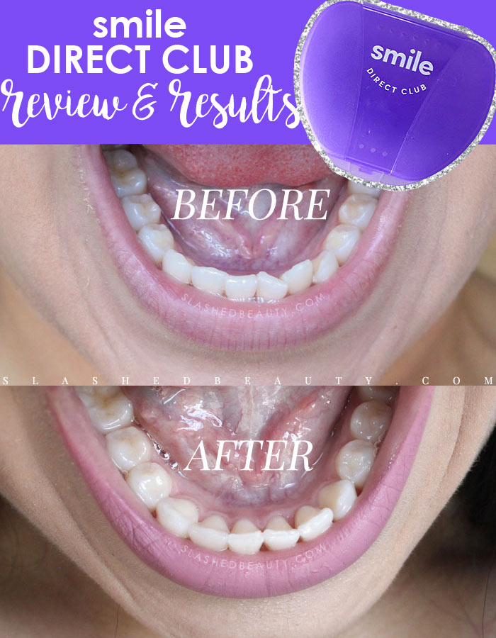 Smile Direct Club Before & After Results and Review | Smile Direct Club Discount Coupon Code: Get 50% off your impression kit & $100 off aligners with code SlashedBeauty | Slashed Beauty
