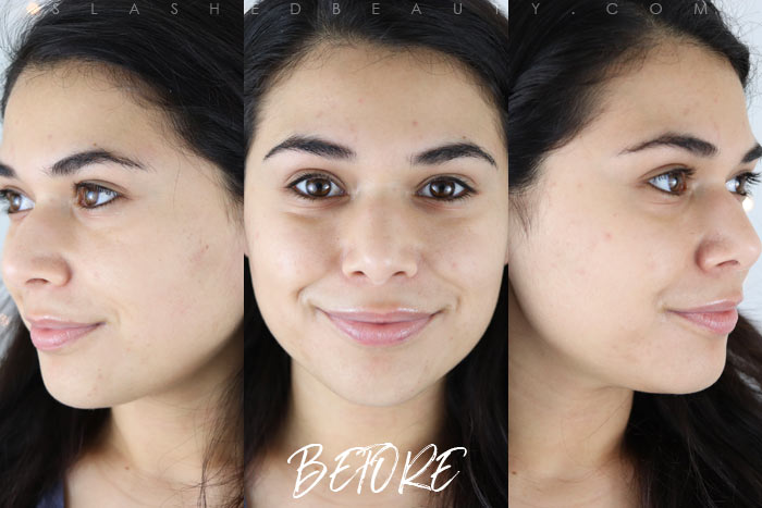 My First Chemical Peel: See the before & after and learn what to expect when you go in for a chemical peel. | Slashed Beauty