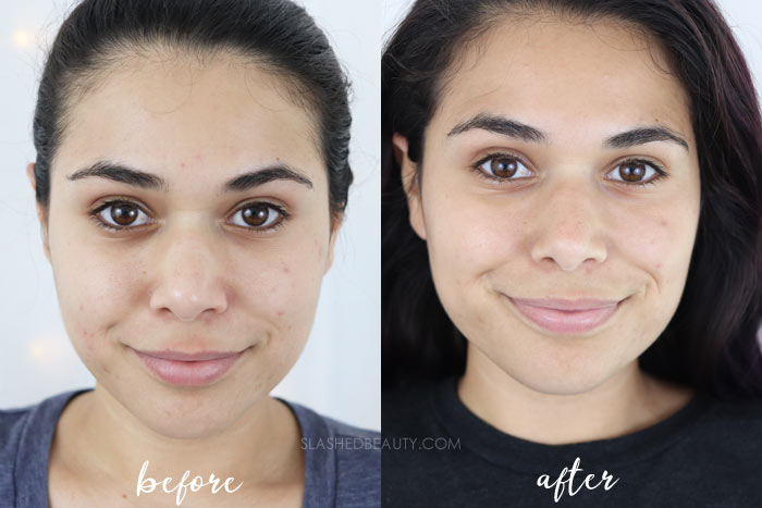 A clean acne spot treatment that works fast-- check out the before and after review of The Better Skin Co. Better Skin Zit No More Acne Treatment. | Slashed Beauty