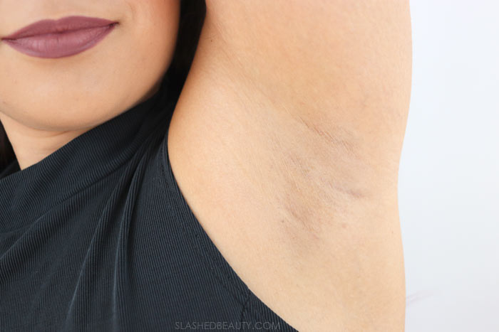 Laser Hair Removal Results After 6 Treatments | Laser Hair Removal Tips: What to Know Before You Start | Slashed Beauty