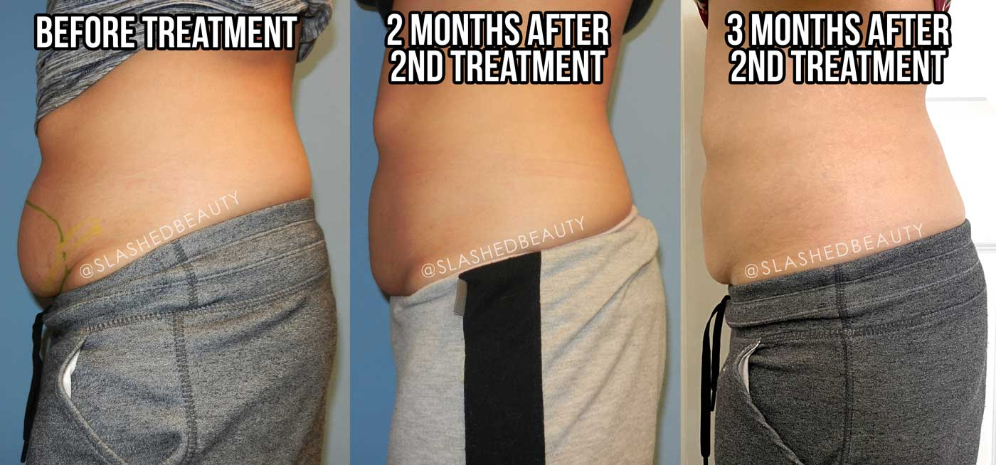 Coolsculpting Lower Belly Before & After Woman | Does Coolsculpting Work? | Slashed Beauty