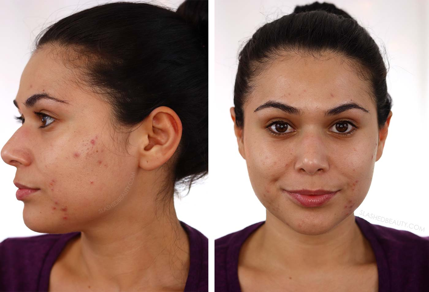 BEFORE Going Dairy Free for Acne: My 30 Day Results | Does Going Dairy Free Help with Acne? | Slashed Beauty