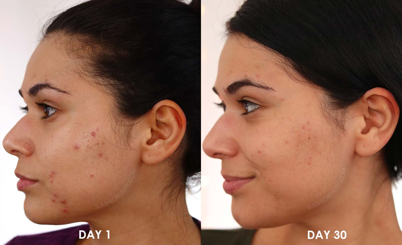 Going Dairy Free for Acne Before & After | Does Going Dairy Free Help with Acne? | Slashed Beauty