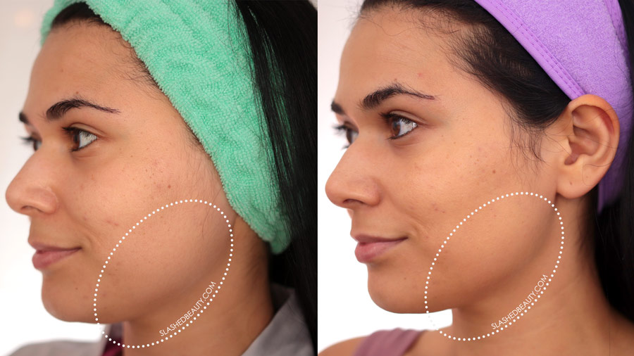 Solawave Before & After Results: Jaw line more defined after 30 days | SolaWave Skin Care Wand Review | Slashed Beauty