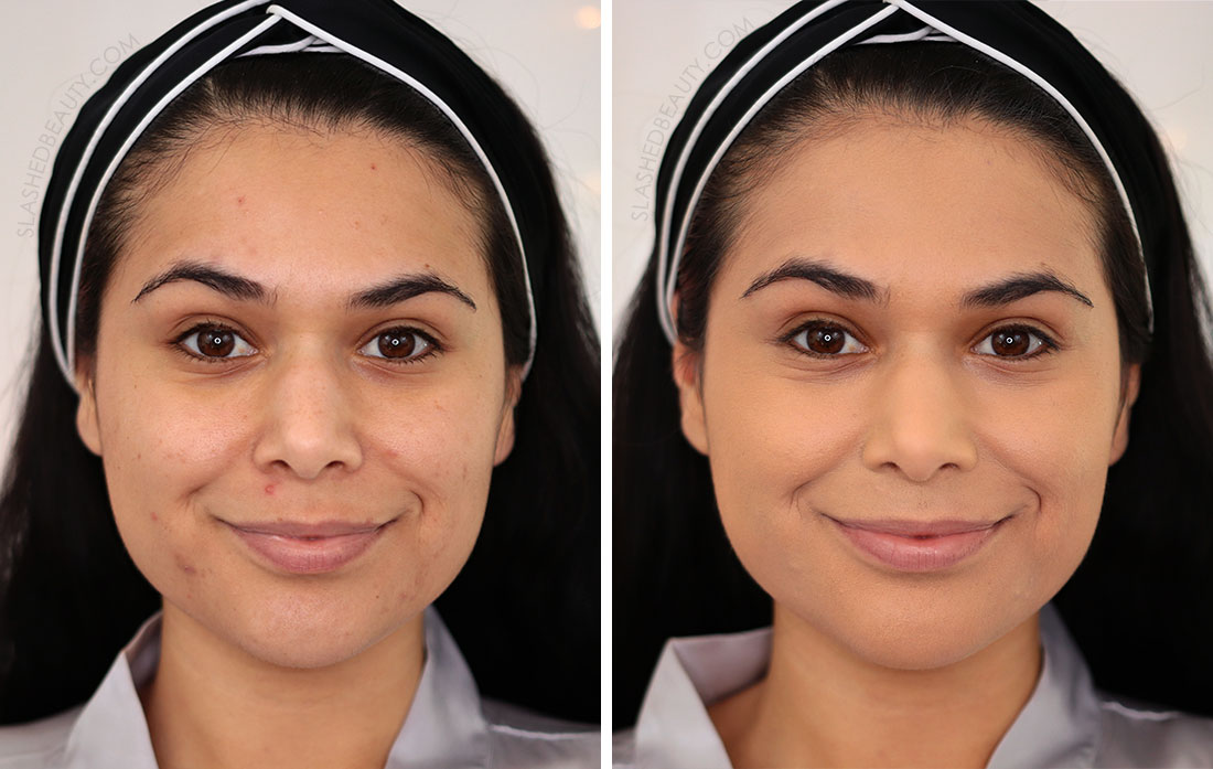 Before and After Drugstore Makeup for Acne Routine   How to Color Correct: Best Drugstore Makeup to Cover Acne   Slashed Beauty